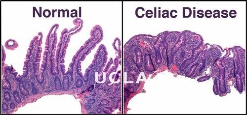 Celiac2