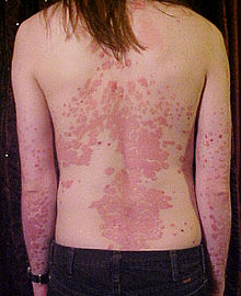 220px-Psoriasis_on_back