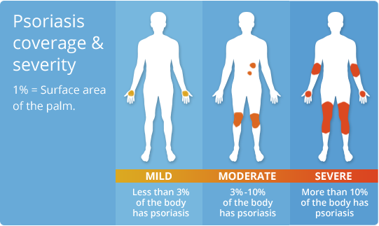 psoriasis-coverage-severity.ashx